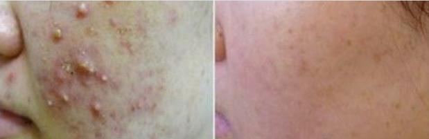 ways to remve acne